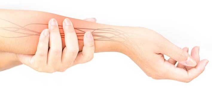 Burning and tingling nerve pain in right arm illustration