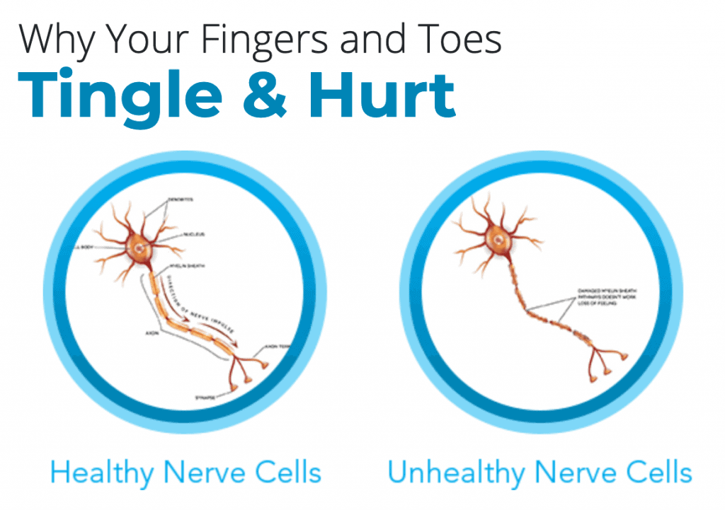 An illustration comparing healthy and unhealthy nerve cells which causes nerve pain.